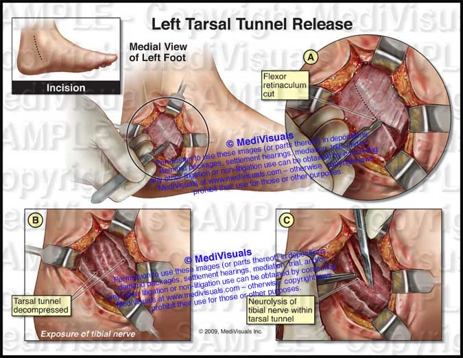 Left Tarsal Tunnel Release Decompression