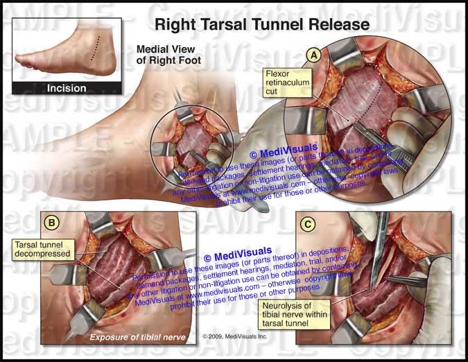 Right Tarsal Tunnel Release Decompression