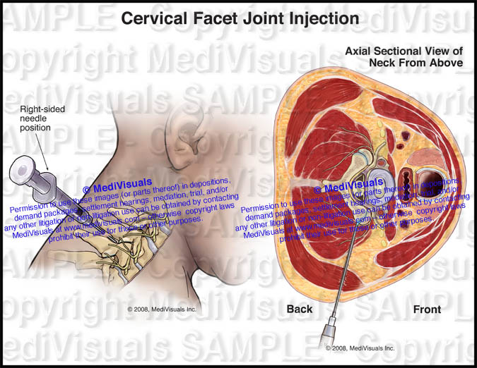 Cervical Facet Joint Injection