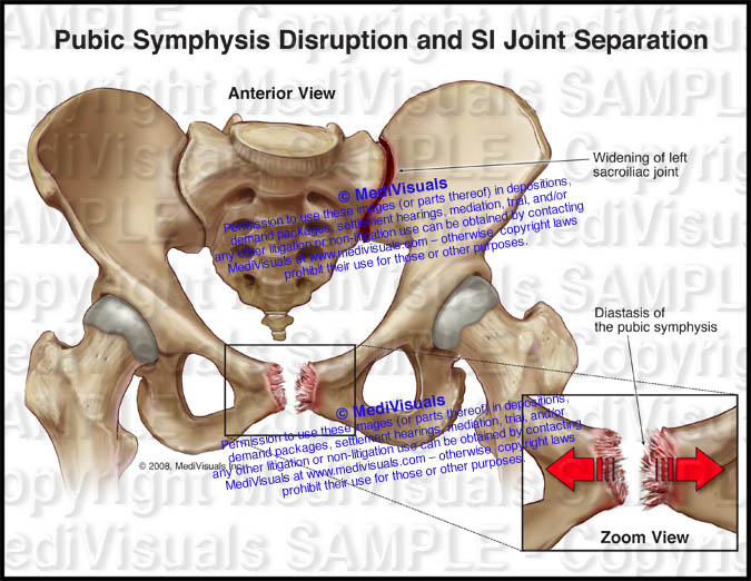 Pubic Symphysis Disruption Si Joint Separation