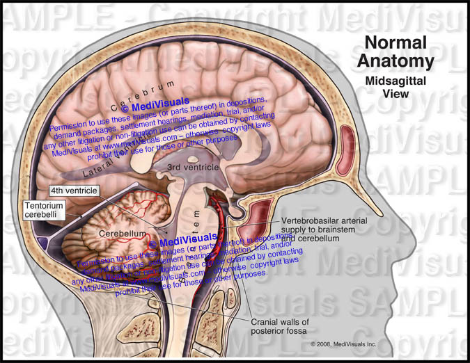 Normal Brain Anatomy Midsagittal View
