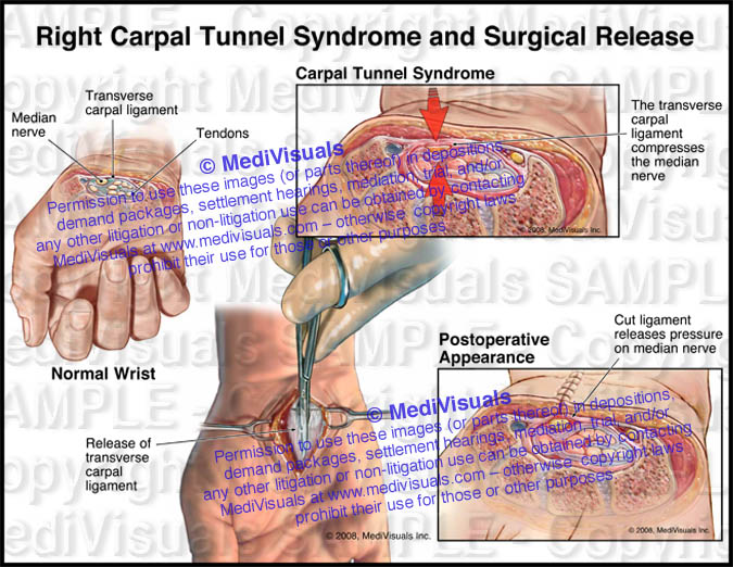Right Carpal Tunnel Syndrome and Surgical Release