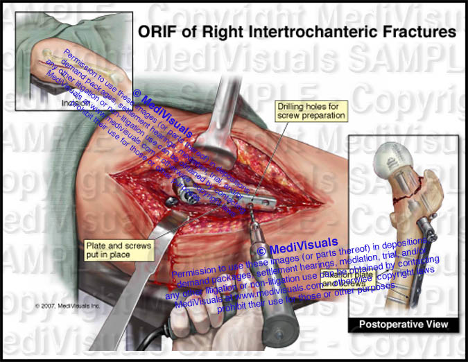 Orif Of Right Hip Fracture