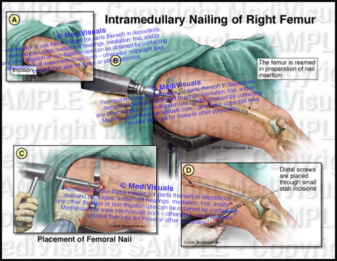 Intraoperative view of...