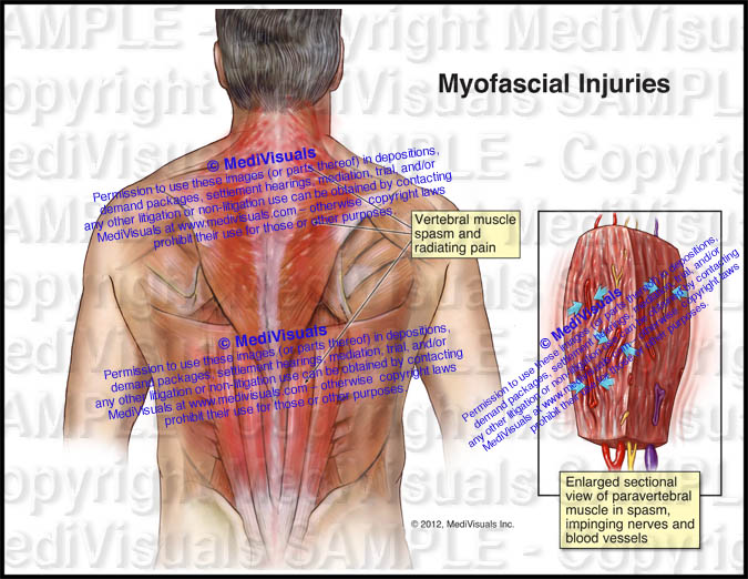 Extent Of Myofascial Injuries