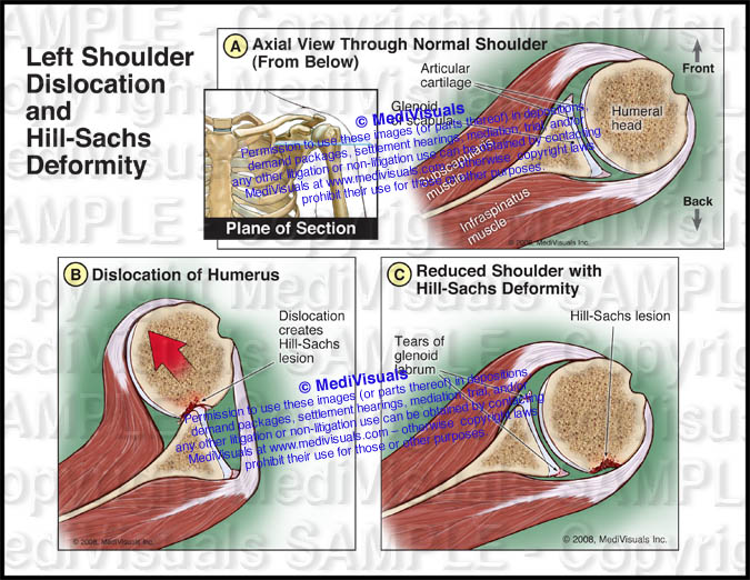 Left Shoulder Dislocation and Hill-Sachs Deformity